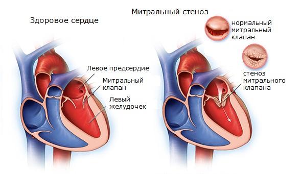Митральный стеноз (схема)