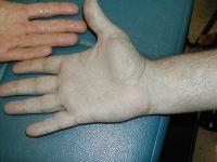 Нормальная и бледная окраска кожи