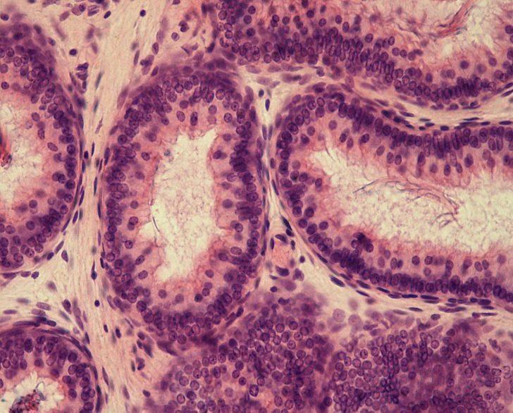 Однослойный цилиндрический эпителий (картина под микроскопом)
