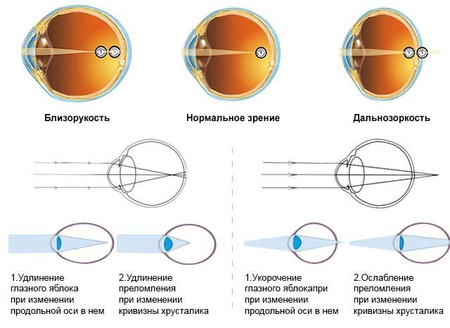Оптические проблемы глаза (схема)