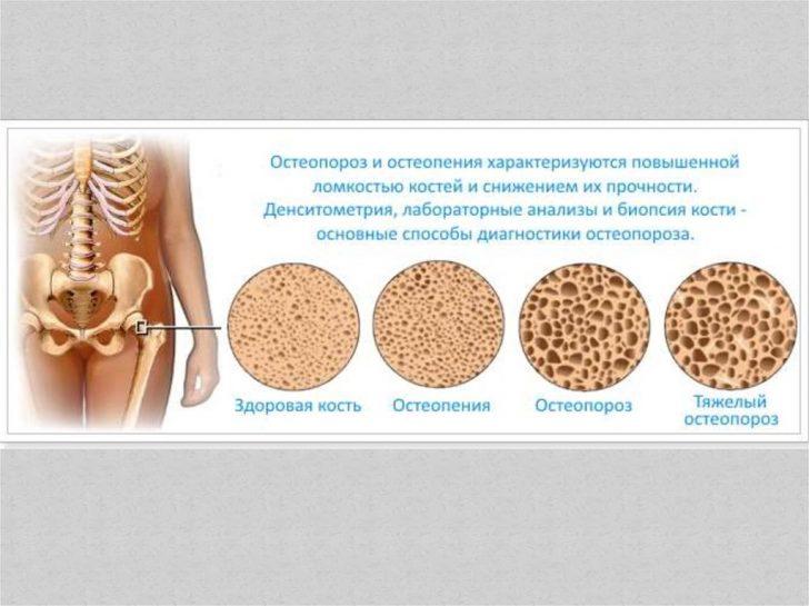 Снижение плотности костей с возрастом