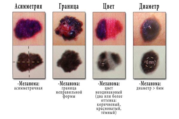 Отличительные признаки меланомы