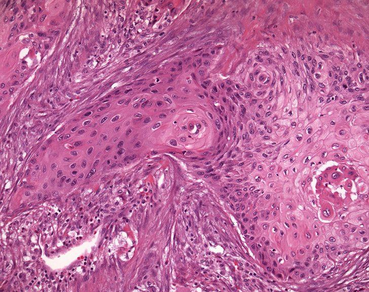 Рак лёгкого (картина под микроскопом)
