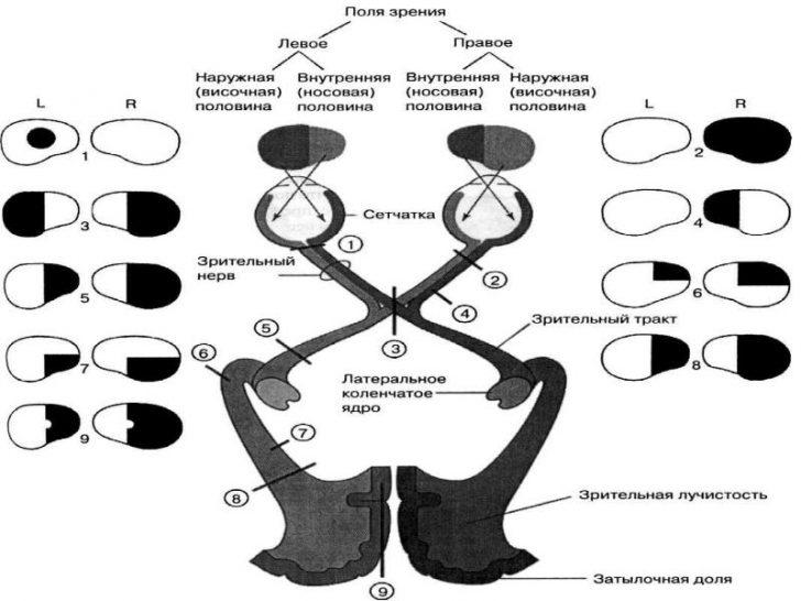 Расстройства зрения при повреждении зрительного нерва (схема)