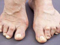 Рематоидный артрит