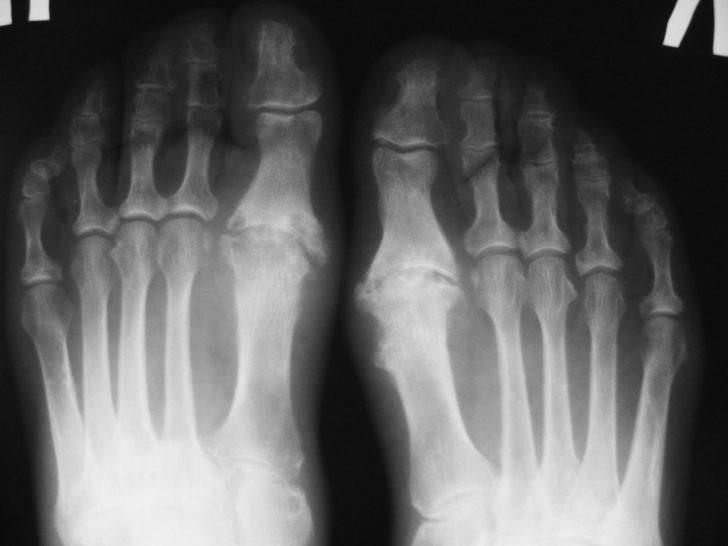 Рентгеновский снимок пациента с артритом