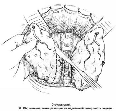 Резекция щитовидной железы (схема)