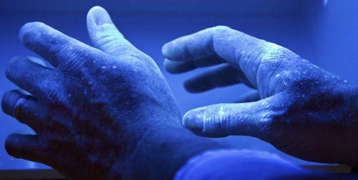 Руки человека, заражённого грибком, под ультрафиолетом