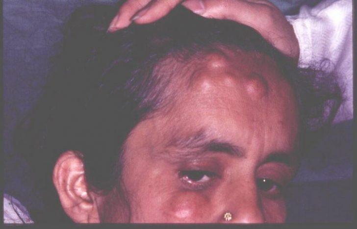 Жировик, фото на лице