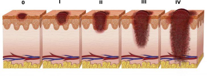 Стадии прогрессирования меланомы