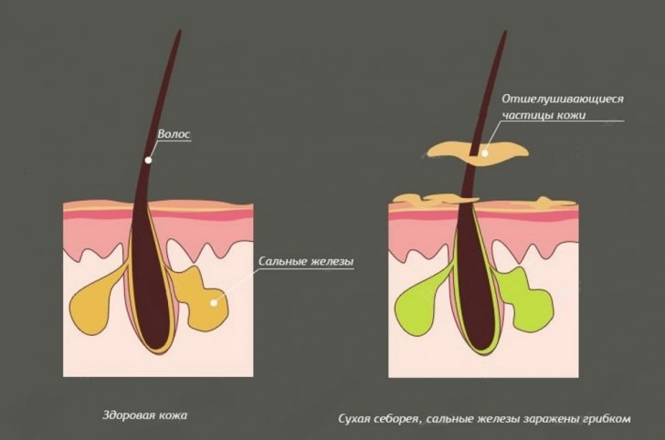 Сухая себорея и здоровая кожа на схеме