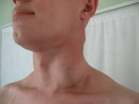 Увеличенные лимфоузел на шее