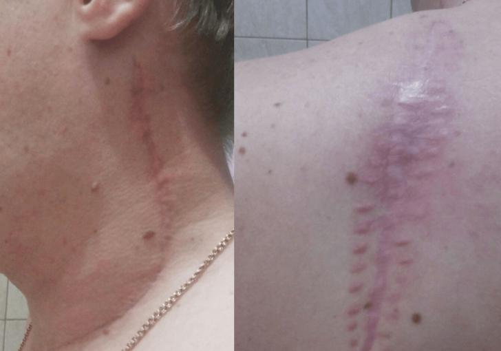 Вид пациента через 3 месяца после удаления меланомы