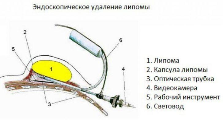 Эндоскопия жировика