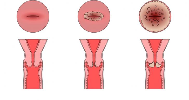 Здоровая шейка матки и с эрозией разной степени