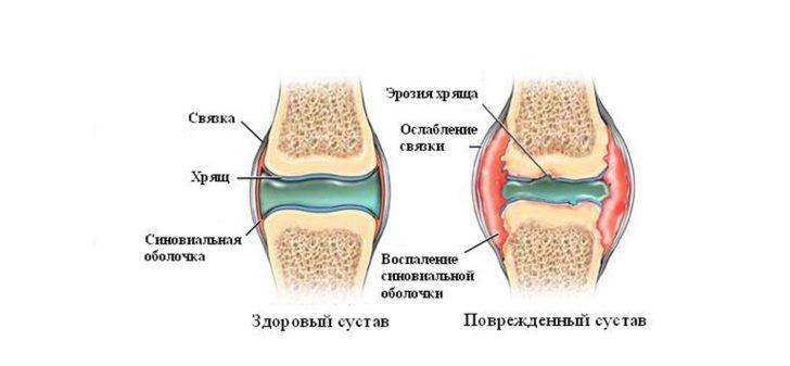 Здоровый сустав и сустав при артрите