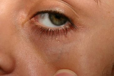 жировик на глазу