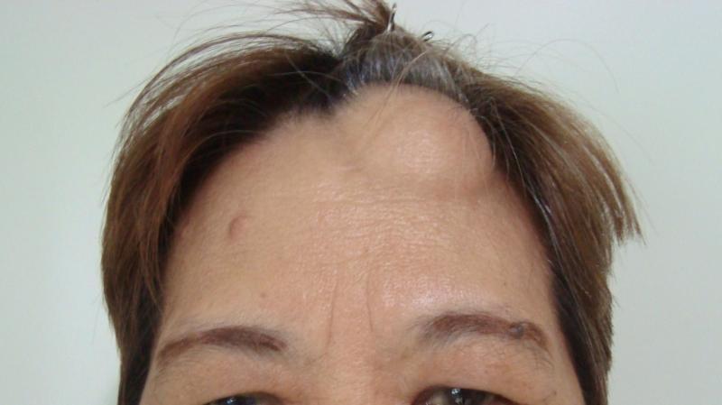 Жировик на голове: как правильно избавиться