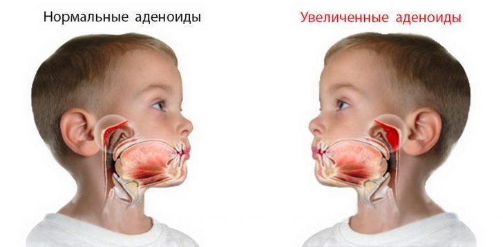Нормальные и увеличенные аденоиды у ребёнка
