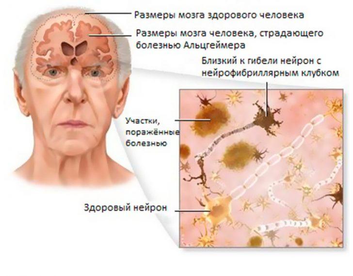 Изменения в мозге при болезни Альцгеймера