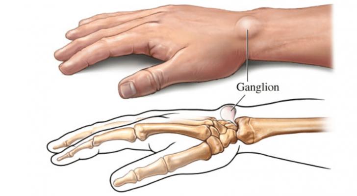 Как выглядит липома на руке