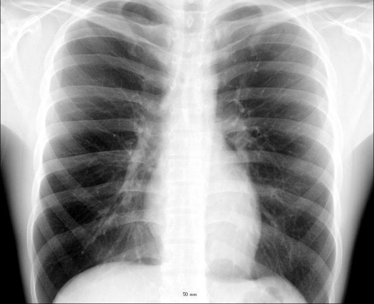 сильный кашель при аллергии