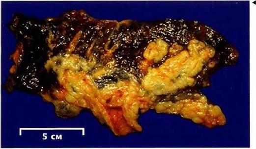 Мелкоклеточный рак лёгкого