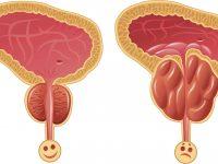 Нормальная простата и воспалённый орган
