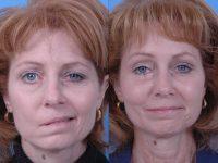 Паралич лицевой мускулатуры до и после лечения