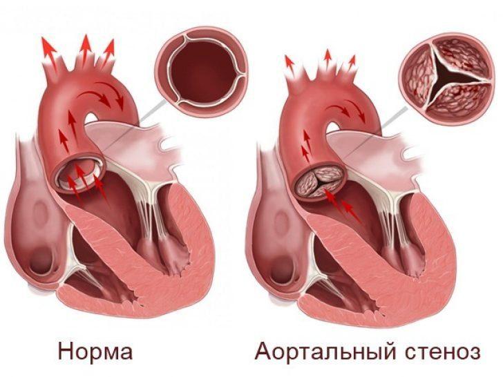 Аортальный стеноз (схема)
