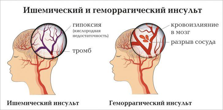 Инсульт (схема)