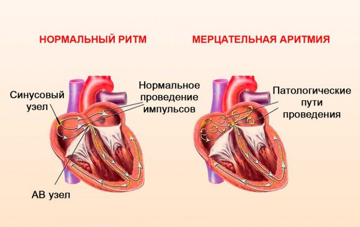 Мерцательная аритмия (схема)