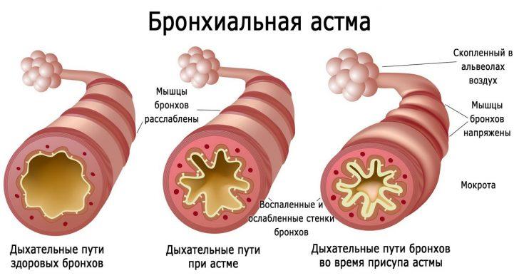 Бронхиальная астма (схема)