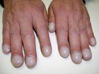 Изменение формы пальцев и ногтей при лёгочных болезнях