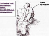 Положение ортопноэ (схема)