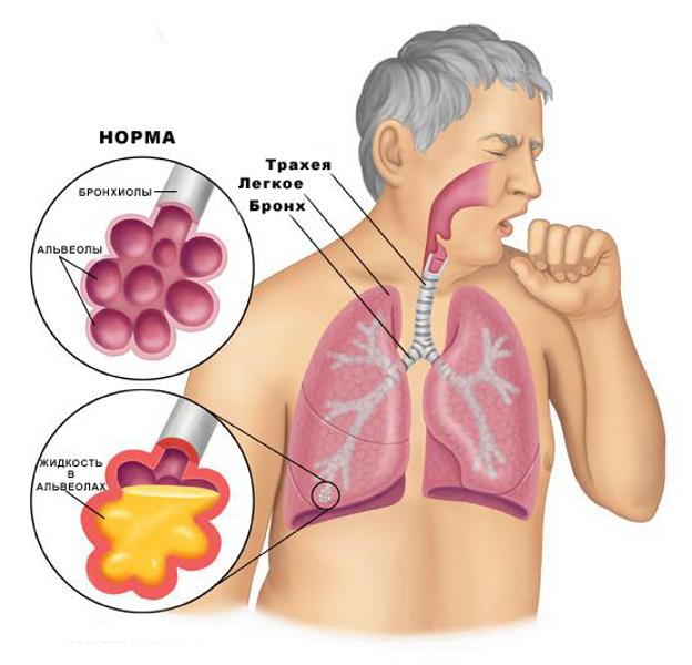 Мокрота в альвеолах (схема)