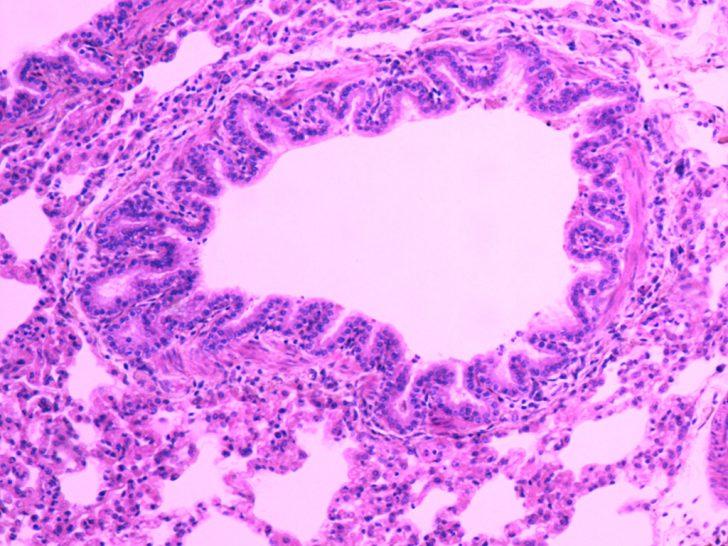 Лёгкое (картина под микроскопом)