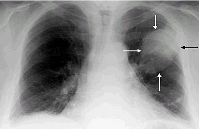 Рак лёгкого на флюорограмме