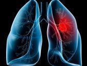 Раковая опухоль, поразившая левое лёгкое