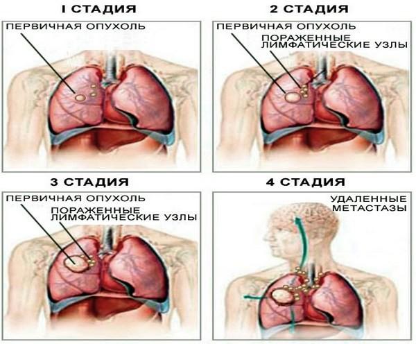 Схематическое изображение стадий распространения рака лёгкого — от небольшой первичной опухоли до отдалённых метастазов