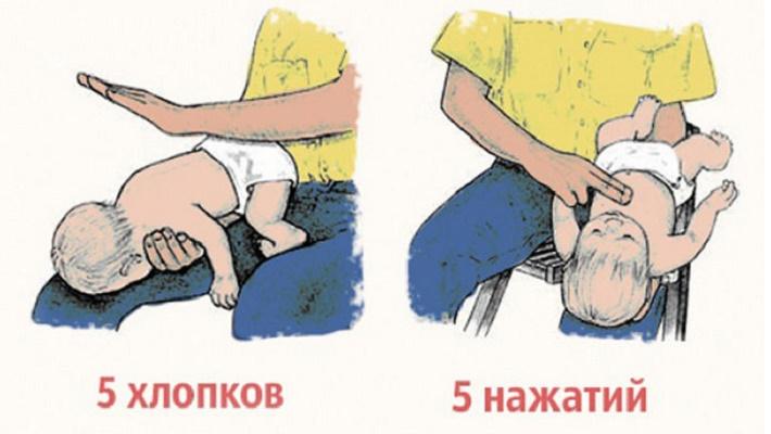 Извлечение инородного тела из дыхательных путей