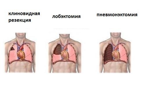 Виды операций при раке лёгкого