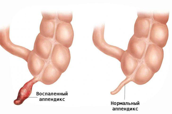 Здоровый и воспалённый аппендиксы