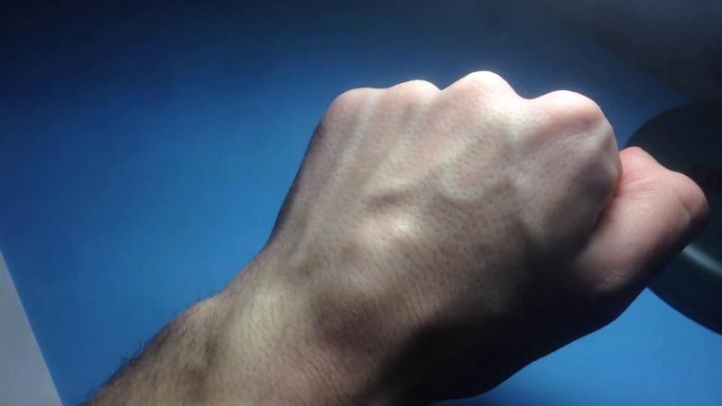 Жировик на руке или ноге: как избавиться от проблемы