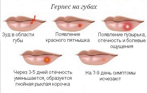 Стадии развития герпетической сыпи на губах