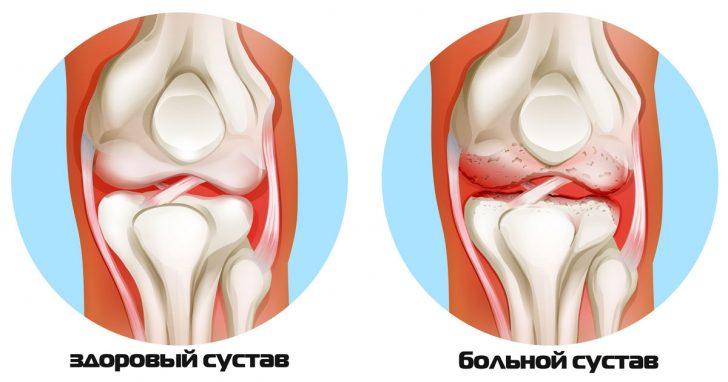 Здоровый и поражённый бруцеллёзом сустав