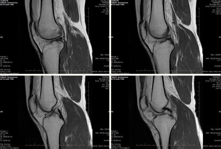 МР-картина коленного сустава