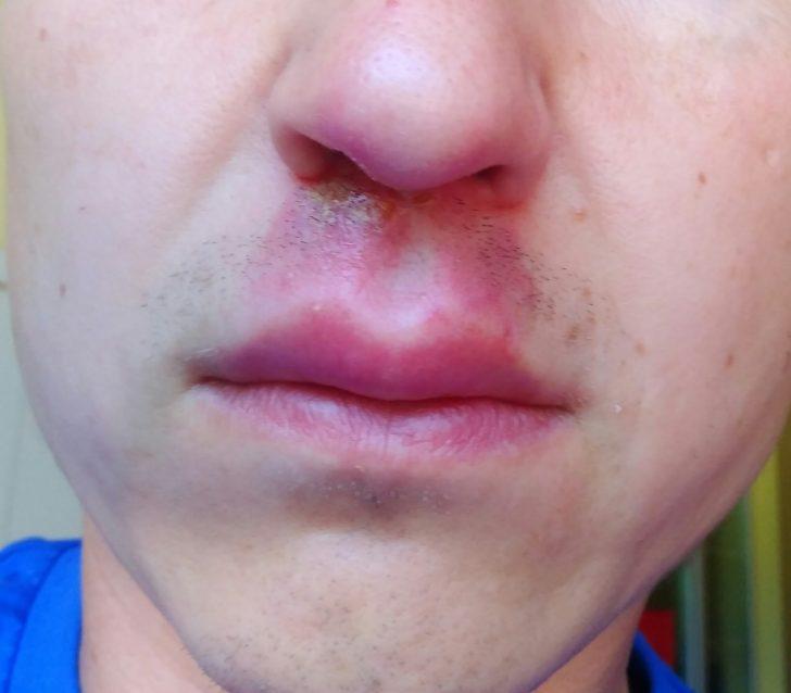 Воспаление кожи под носом и в пазухах