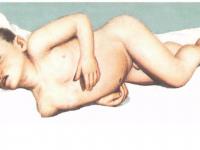 Типичная поза ребёнка, больного менингитом