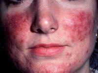 Высыпания при эпидермальном стафилококке